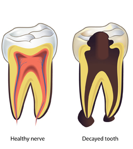Root Canal Treatment In Hyderabad Rct Cost In Hyderabad