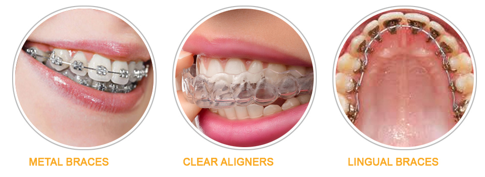 ceramic braces cost in hyderabad