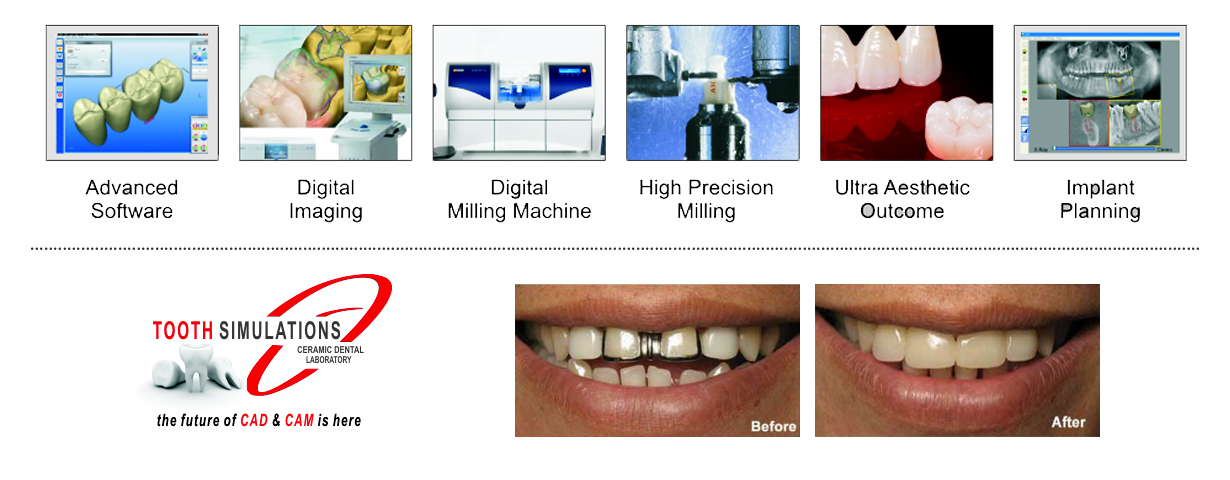The Technology Is So Precise That Dental Restorations Made By Cad Cam Often Fit Better Than Those Made By Hand Patient Satisfaction Is Being Increased