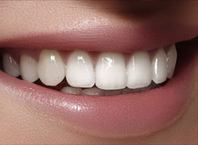 porcelain-veneers1