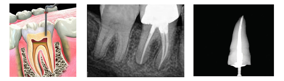 Cost of Root Canal Treatment and Crown - RCT Hyderabad