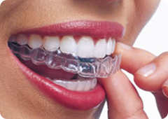 invisible braces cost in hyderabad