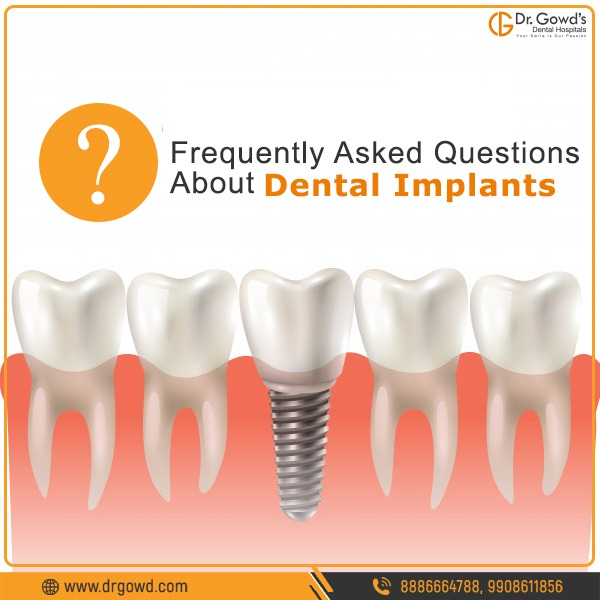 Dental Implants Treatments in hyderabad
